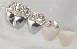 coronas-metalicas